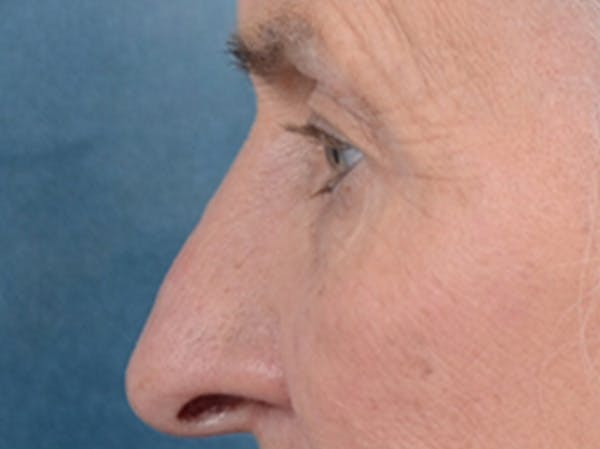 Eyelid Lift Gallery - Patient 19056130 - Image 5