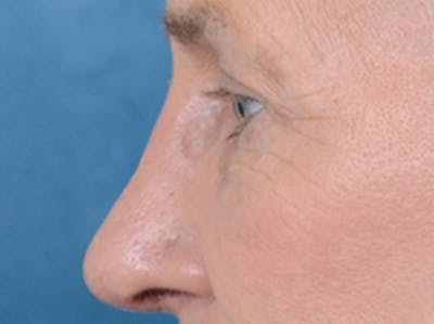 Eyelid Lift Gallery - Patient 19056130 - Image 6
