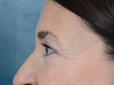 Eyelid Lift Gallery - Patient 5923298 - Image 6
