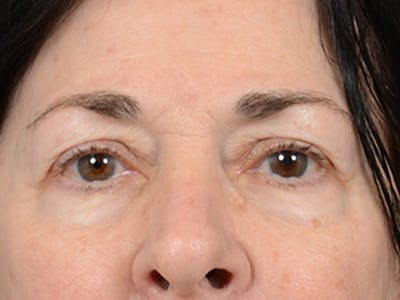 Eyelid Lift Gallery - Patient 6158495 - Image 1