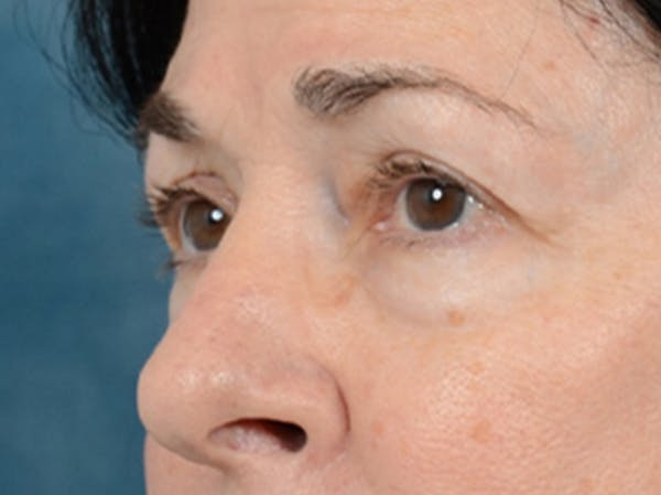 Eyelid Lift Gallery - Patient 6158495 - Image 3