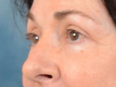 Eyelid Lift Gallery - Patient 6158495 - Image 4