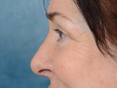 Eyelid Lift Gallery - Patient 6158495 - Image 6