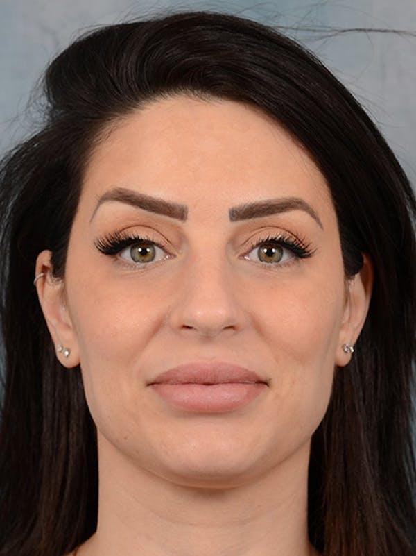 Neck Liposuction Gallery - Patient 25729200 - Image 1