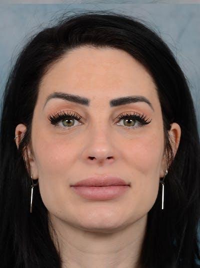 Neck Liposuction Gallery - Patient 25729200 - Image 2