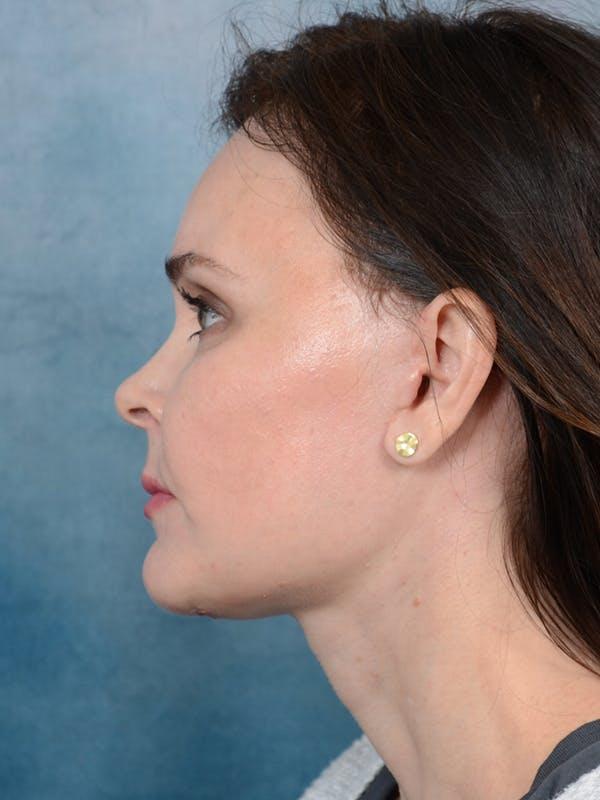 Facelift Gallery - Patient 26207310 - Image 6