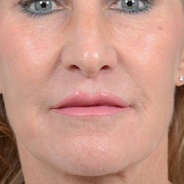 Lip Lift Gallery - Patient 16861941 - Image 2