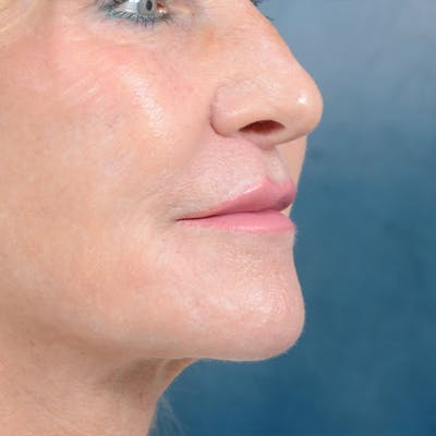 Lip Lift Gallery - Patient 16861941 - Image 4