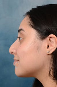 Rhinoplasty Gallery - Patient 29394117 - Image 1