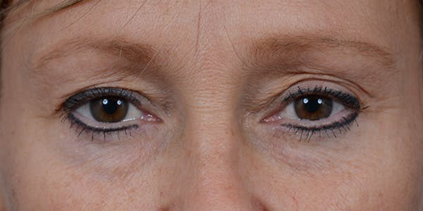 Eyelid Lift Gallery - Patient 29409181 - Image 1