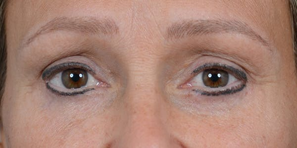 Eyelid Lift Gallery - Patient 29409181 - Image 2