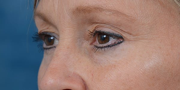 Eyelid Lift Gallery - Patient 29409181 - Image 3