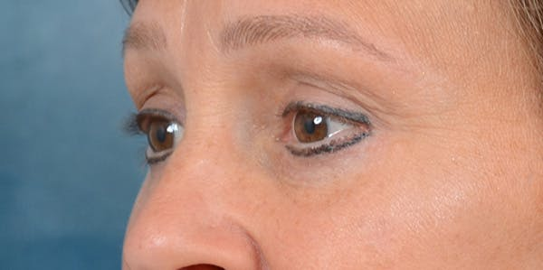 Eyelid Lift Gallery - Patient 29409181 - Image 4