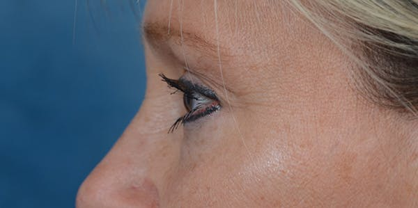 Eyelid Lift Gallery - Patient 29409181 - Image 5