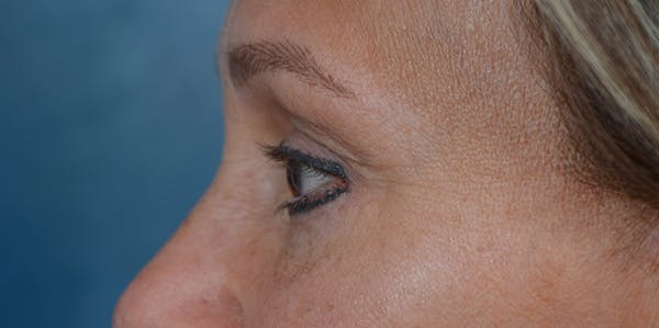 Eyelid Lift Gallery - Patient 29409181 - Image 6
