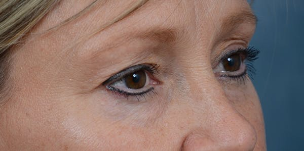 Eyelid Lift Gallery - Patient 29409181 - Image 7