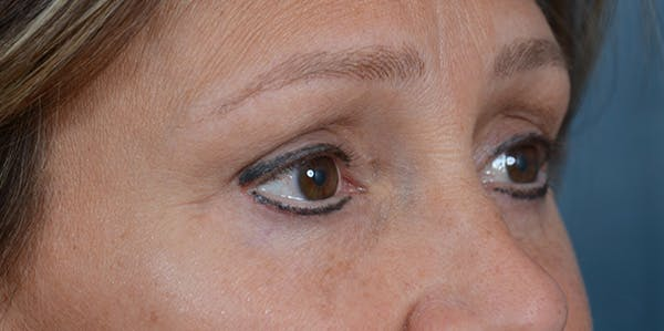 Eyelid Lift Gallery - Patient 29409181 - Image 8