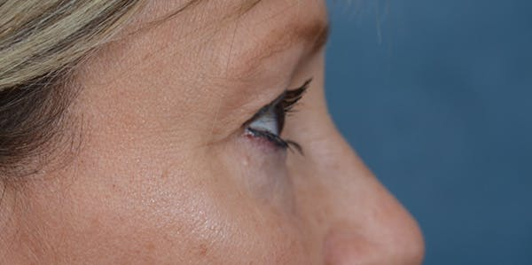 Eyelid Lift Gallery - Patient 29409181 - Image 9