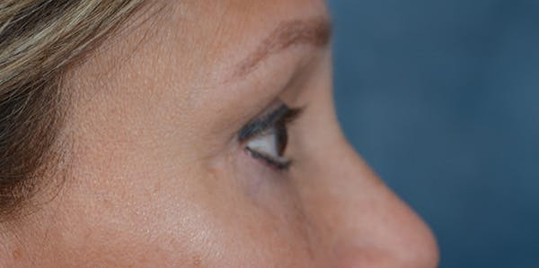 Eyelid Lift Gallery - Patient 29409181 - Image 10