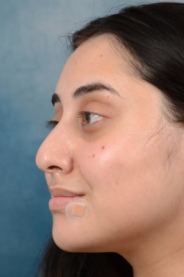 Fat Transfer Gallery - Patient 35841384 - Image 3