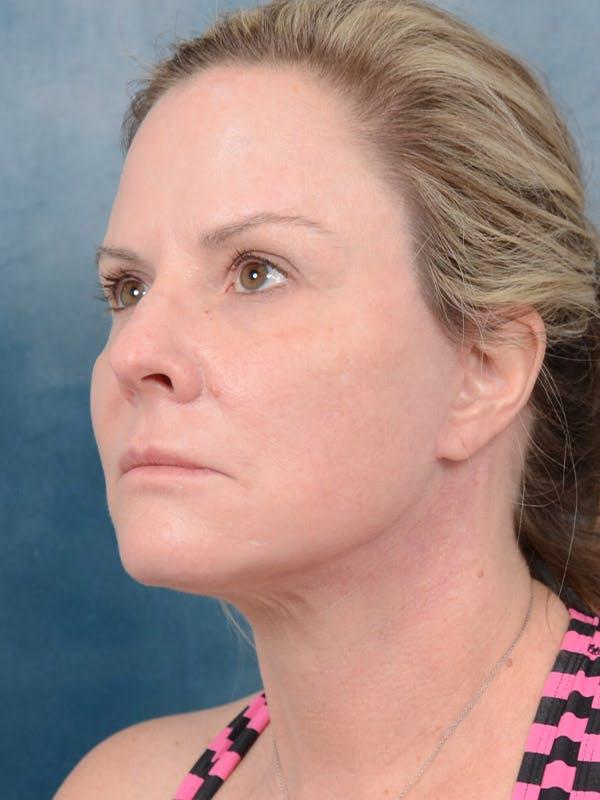 Facelift Gallery - Patient 40113234 - Image 2
