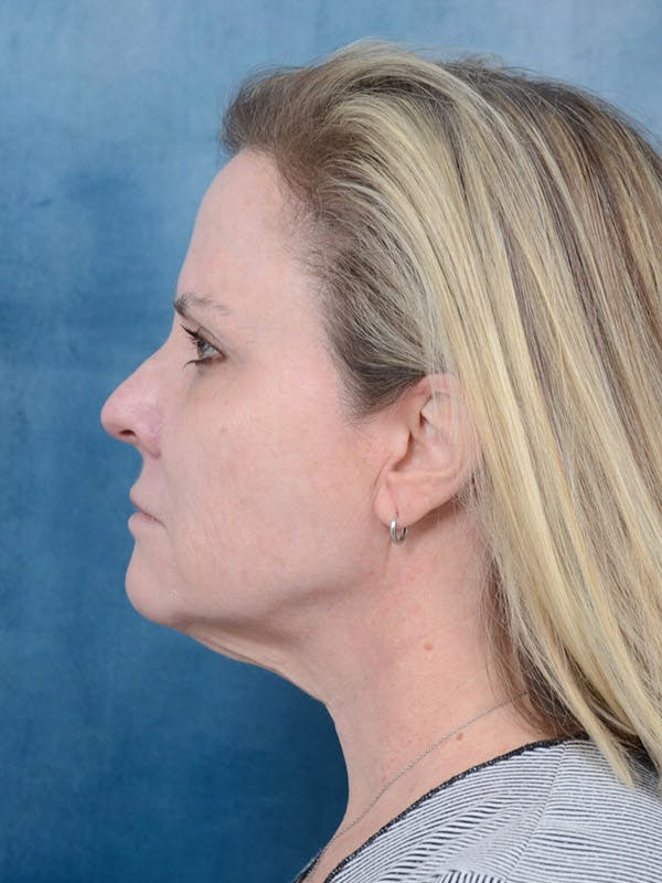 Facelift Gallery - Patient 40113234 - Image 5