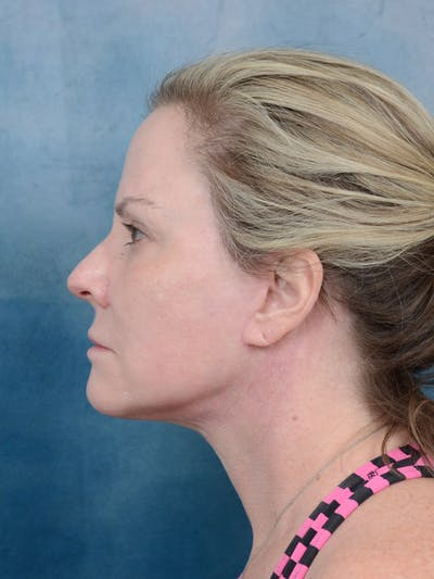 Facelift Gallery - Patient 40113234 - Image 6