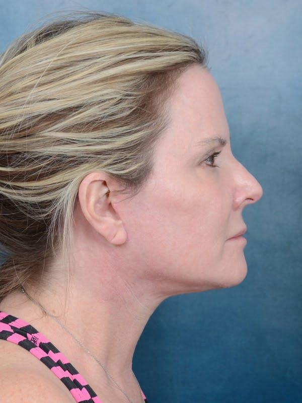 Facelift Gallery - Patient 40113234 - Image 10