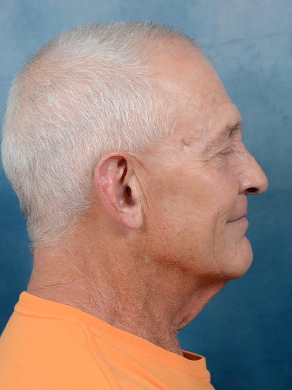 Facelift Gallery - Patient 40871140 - Image 5