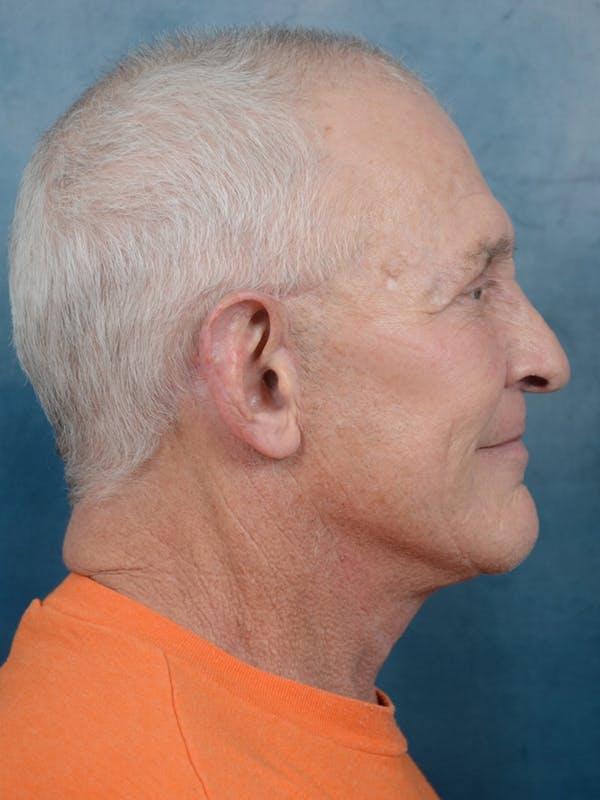 Facelift Gallery - Patient 40871140 - Image 6