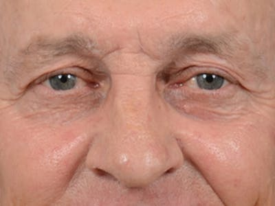 Eyelid Lift Gallery - Patient 40871211 - Image 1