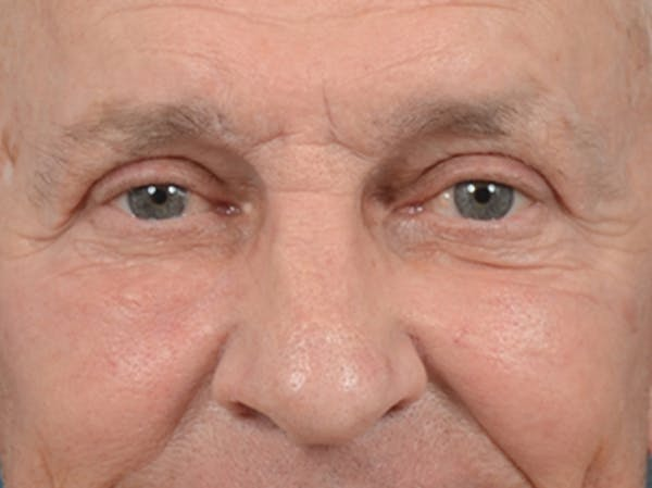 Eyelid Lift Gallery - Patient 40871211 - Image 2