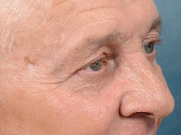 Eyelid Lift Gallery - Patient 40871211 - Image 3
