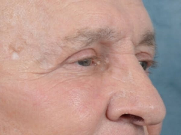 Eyelid Lift Gallery - Patient 40871211 - Image 4