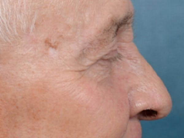Eyelid Lift Gallery - Patient 40871211 - Image 5