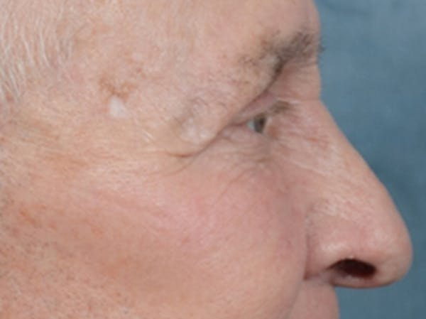 Eyelid Lift Gallery - Patient 40871211 - Image 6