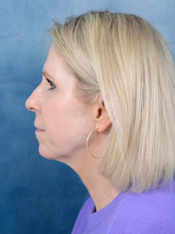 Facelift Gallery - Patient 41510459 - Image 5