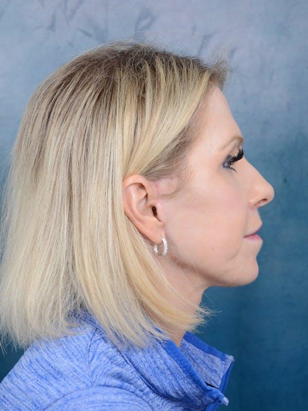 Facelift Gallery - Patient 41510459 - Image 10