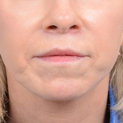 Lip Lift Gallery - Patient 41510471 - Image 1
