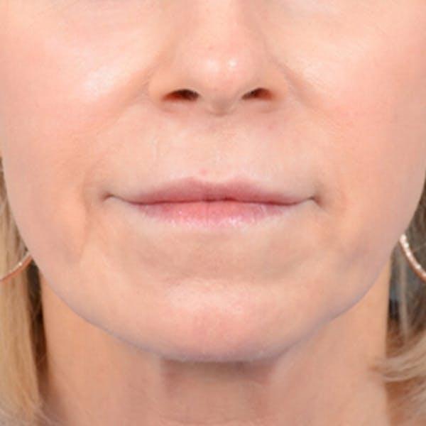Lip Lift Gallery - Patient 41510471 - Image 2