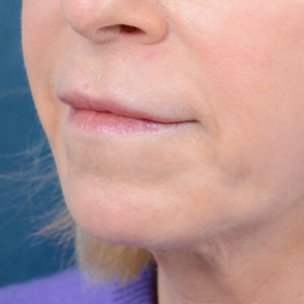 Lip Lift Gallery - Patient 41510471 - Image 3