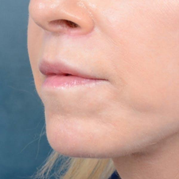 Lip Lift Gallery - Patient 41510471 - Image 4