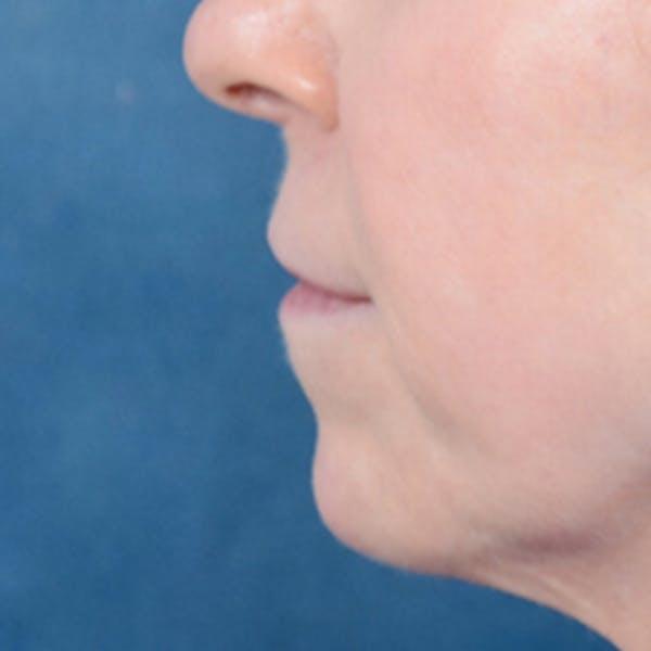 Lip Lift Gallery - Patient 41510471 - Image 5
