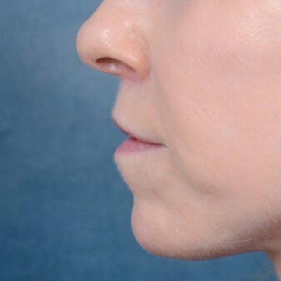 Lip Lift Gallery - Patient 41510471 - Image 6