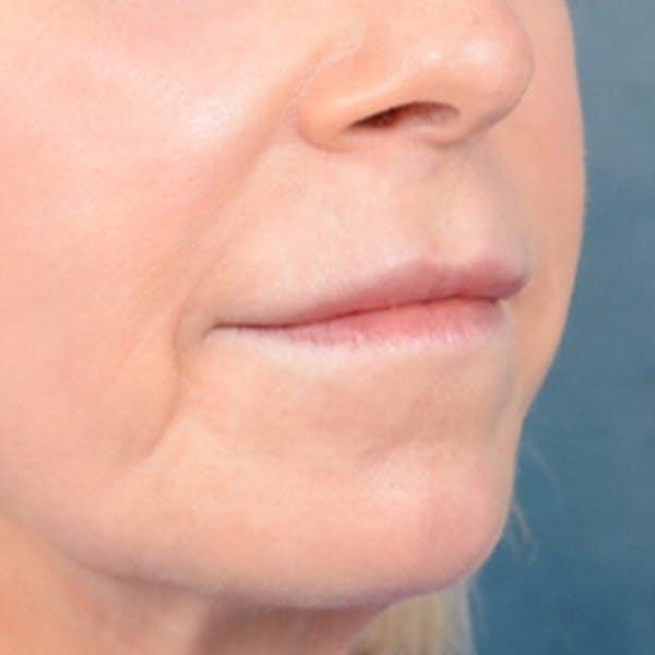 Lip Lift Gallery - Patient 41510471 - Image 7