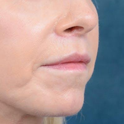 Lip Lift Gallery - Patient 41510471 - Image 8