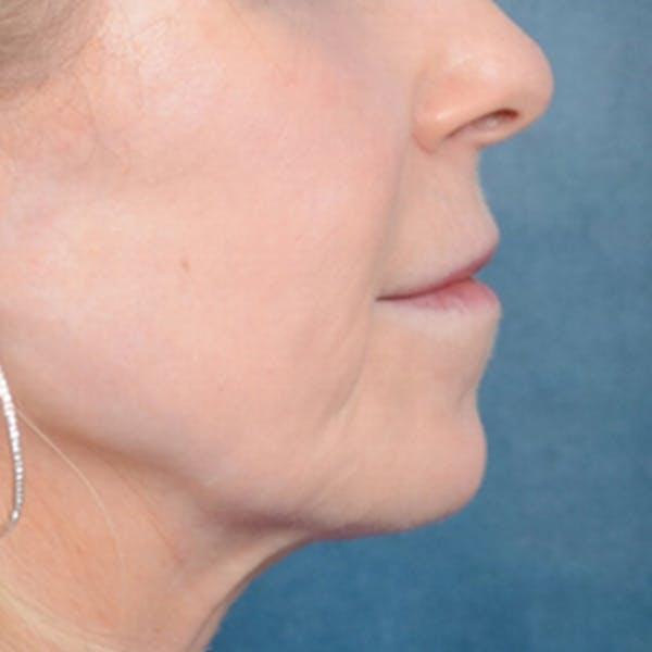 Lip Lift Gallery - Patient 41510471 - Image 9