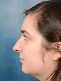 Rhinoplasty Gallery - Patient 44232963 - Image 5