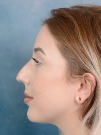 Rhinoplasty Gallery - Patient 44329923 - Image 5