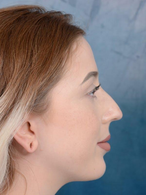 Rhinoplasty Gallery - Patient 44329923 - Image 9